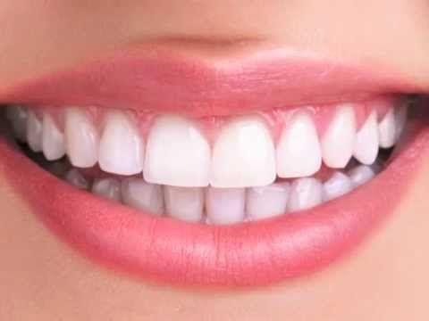 Tooth Whitening - Dentists Brampton
