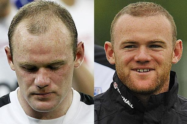Wayne Rooney's Hair Transplant | Before and After | Belvedere Clinic http://www.belvedereclinic.co.uk/blog/2014/10/29/celebs-reap-the-benefits-of-hair-transplants/