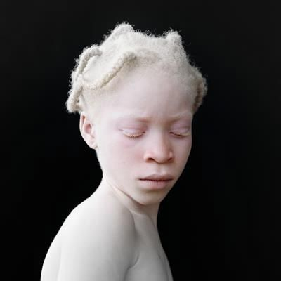 182 best images about Beautiful Black Albinos on Pinterest