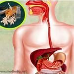 fatty liver Fatty liver diet information such as nafld, or non-alcoholic fatty liver disease, is a condition where excess fat is stored in the liver. In its initial phase, this condition does not pose any harm to a person, and is completely reversible. get your treatment here http://heartbeatsbook.com/fatty-liver-diet-information-nafld-patients/