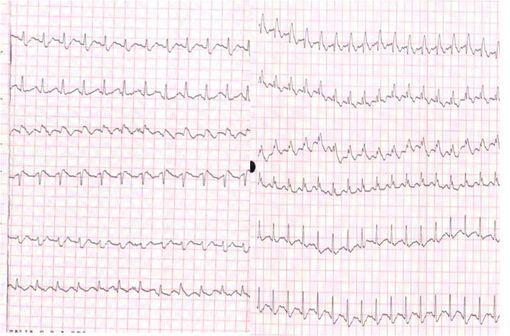 ELIQUIS (apixaban) : remboursable dans la thrombose veineuse profonde et l'embolie pulmonaire - Actualités - Vidal.fr