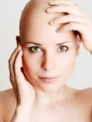Great site for information about all forms of Alopecia (areota, totalis, and universalis)
