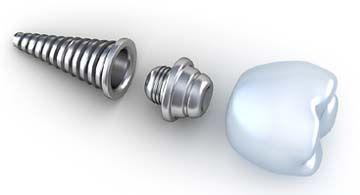 Dental Implants, Cosmetic Dentistry, Pinnacle Dental #cosmetic_dentistry #dental_implants #dentist #Houston_Texas