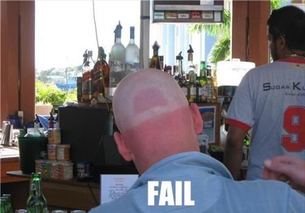 21 Funny Sunburn Pictures | Imgism