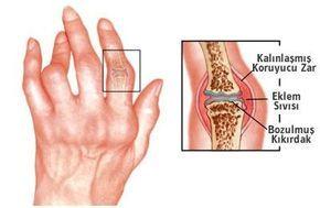 Isırgan otu, kiraz Sapı Kürü ile iltihaplı eklem romatizması tedavisi