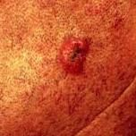 """Squamous cell carcinoma (SCC) is a type of skin cancer most commonly found on sun-exposed skin. Scalp, upper ears, face, and shoulders are areas I most commonly find our patients' """"squames"""". About a quarter-of-a-million Americans develop SCC every year. Unlike basal cell cancers that can take years to become metastatic (spreading to distant parts of the body), SCC can do so far more rapidly and is, therefore, considered a more urgent type of skin cancer."""