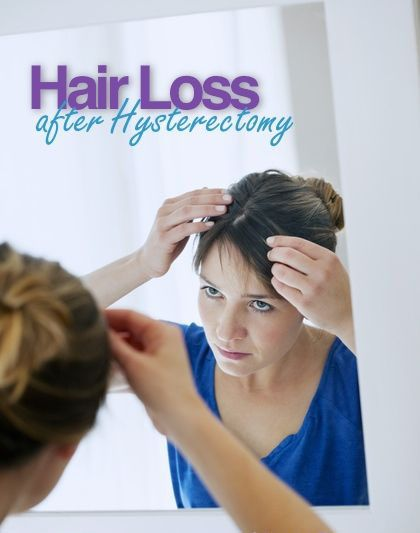 Losing Hair a Lot after Hysterectomy – Medi Idea