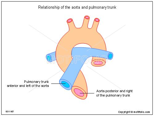 the pulmonary trunk is a major vessel in the heart that starts at, Human Body
