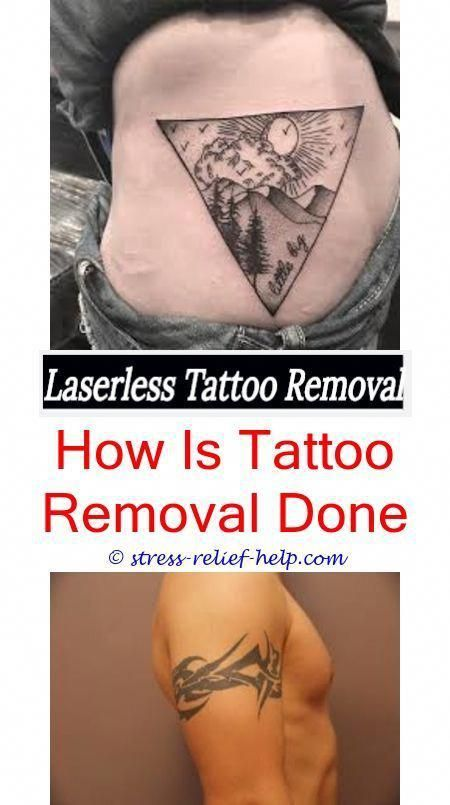 Tattoo Removal Near Me Do It Yourself Tattoo Removal Methods