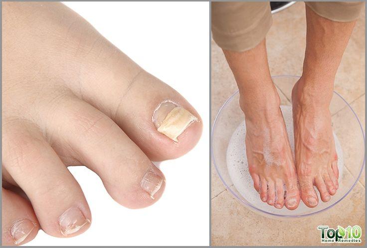 Home remedies for ingrown toenails ingrown toe nail toe