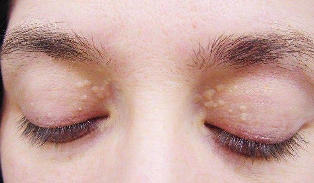 Cholesterol Deposits Around The Eyes: Causes And N…