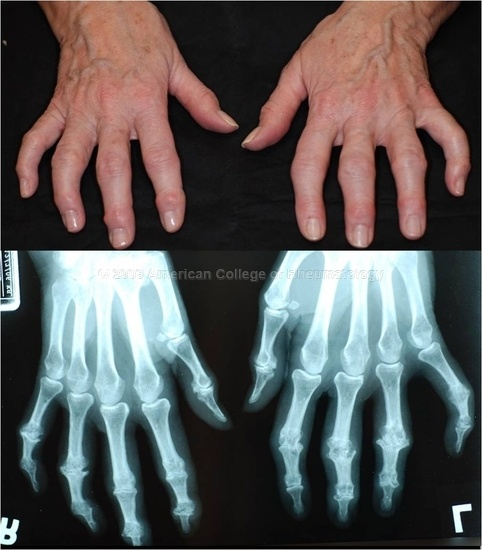 Erosive Osteoarthritis: Hands, showing Bouchard, Heberden nodes, sparing of MCP joints, central erosions, loss of joint space, gull-wing deformity, and osteophyte formation
