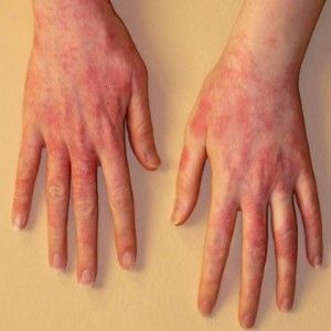 Home Remedies For Sun Poisoning