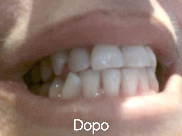 Lo sbiancamento dei denti secondo SOS Estetista