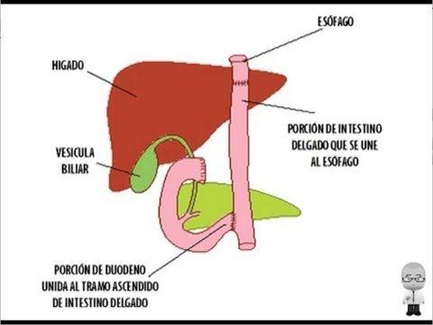 ¿Sabe Vd. cuál es el tratamiento del cáncer de estómago? ¿Sabe qué tipos de operaciones quirúrgicas se utilizan? ¿Sabe si alguna otra herramienta terapéutica es útil en este tumor maligno? ¡En el video se lo respondemos todo!