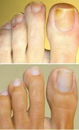 This is the best thing on the market today  toe fungus toenails