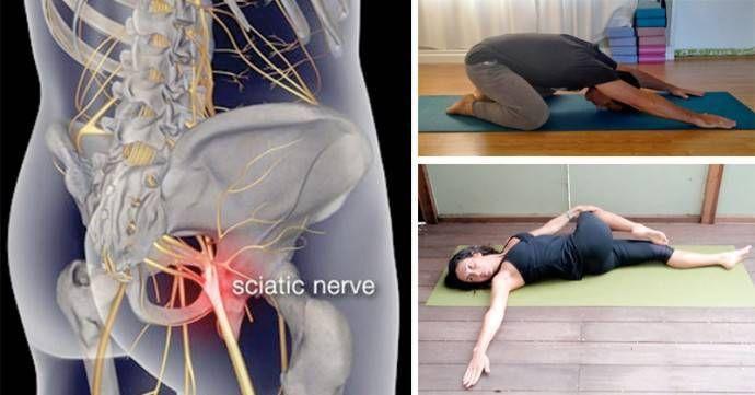 8 postures de yoga simples pour soulager la douleur sciatique en moins de 20mn Qu'est-ce que c'est, une sciatique ? Les nerfs sciatiques sont les nerfs les