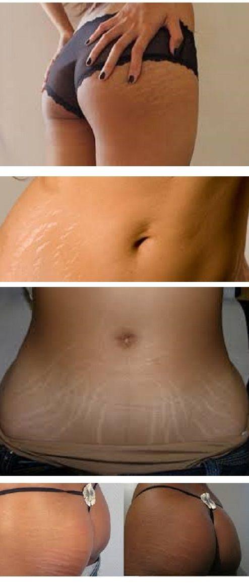 Striae verschijnen meestal tijdens de zwangerschap of tijdens het gewichtsverlies, maar kan ook tijdens de puberteit verschijnen. De lichaamsdelen die het meest worden beïnvloed door striae zijn de buik, borsten, armen en dijen. Zelfs als deze tekenen lichter na verloop van tijd, is het waarschijnlijk geleidelijk verdwijnen producten zoals glycolzuur, een vorm van alfa-hydroxyzuur uit suikerriet die de mogelijkheid bevat om de ontwikkeling van collageen intensiveren alsmede scrubben de dode…