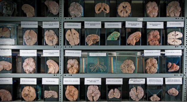 Museos de Cerebros, Educación - Semana.com - Últimas Noticias