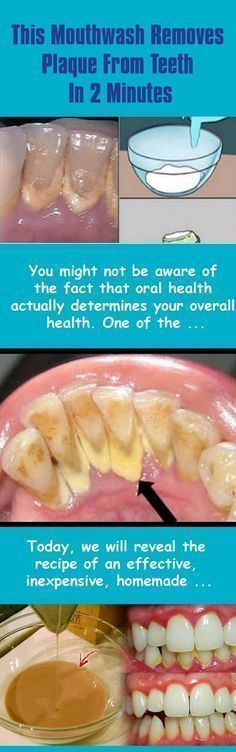This Mouthwash Removes Plaque From Teeth In 2 Minutes #bestwaytoremoveplaquefromteeth #removingplaquefromteeth #RemovePlaqueFromTeeth