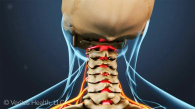 Cervical radiculopathy is pain starting in the upper spine (neck) that causes pain, numbness, or weakness in the neck and going down the arm or arms.