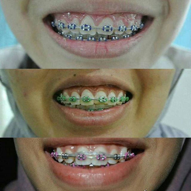 Mejores 89 imgenes de shah alam dentist en pinterest setiap bulan mesti pening tak tau nak piih warna apa orthodontics braces bracesmalaysia klinikgigi orthodontictreatment bracesgirl braceslife solutioingenieria Choice Image