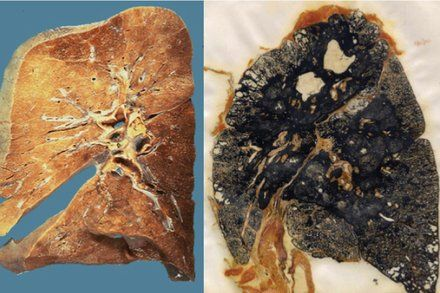 Black Lung Disease Comes Storming Back in Coal Country