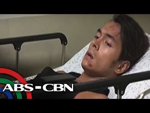 TV Patrol: Jake Cuenca, ooperahan dahil sa aksidente sa bisikleta - WATCH VIDEO HERE -> http://philippinesonline.info/trending-video/tv-patrol-jake-cuenca-ooperahan-dahil-sa-aksidente-sa-bisikleta/   Naaksidente habang nagbibisikleta ang aktor na si Jake Cuenca. Nabali ang kanyang kamay at kailangang operahan.  Subscribe to the ABS-CBN News channel! –  Watch the full episodes of TV Patrol on TFC.TV   and on IWANT.TV for Philippine viewers, click: Visit our website...