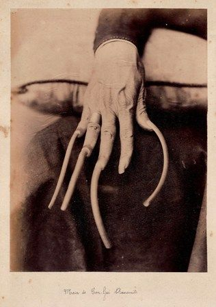 Hand of a wealthy Annamese (former name of the Vietnamese) attributed to Emile Gsell. Long fingernails in Asia were a sign that the person was so rich that they did not need to work. 1875