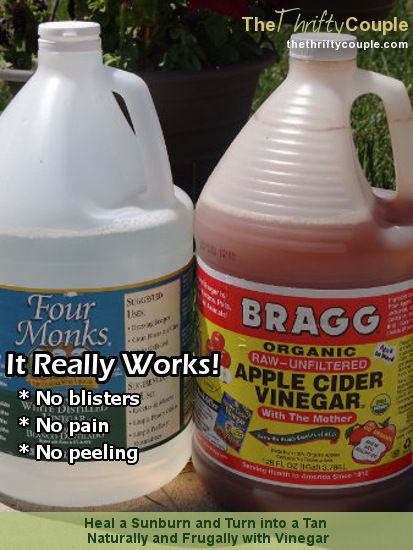 Heal A Sunburn (No blisters, No Pain and No peeling) and Turn Into A Tan Naturally and Frugally with Vinegar - It Really Works