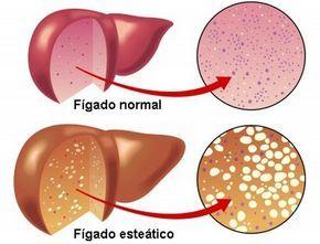 O que é bom para gordura no fígado | A esteatose hepática não tem um tratamento médico específico, mas tem alguns remédios naturais que podem ajudar a melhorar. Leia mais: http://www.vivaplenamente.net/o-que-e-bom-para-gordura-no-figado/