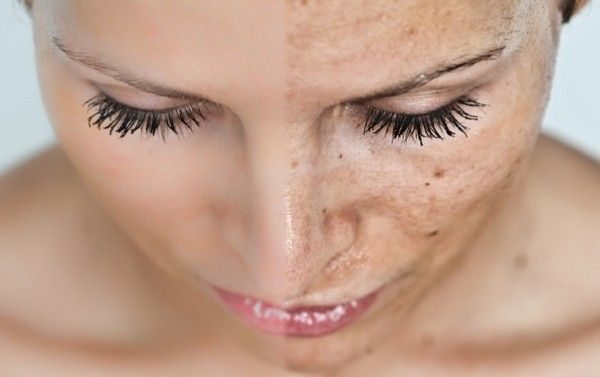 Sun spots, age spots, and freckles are often a result of exposure to the dangerous ultraviolet rays of the sun that cause damage to melanin and lead to short-term or long-term discoloration. In most cases, they appear on the hands and face, but they can also occur on any body part exposed to the sun.Skin […]