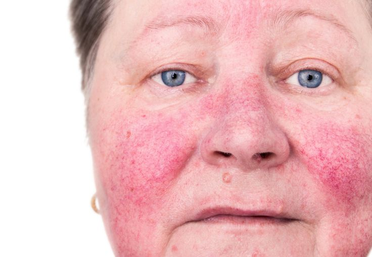 DIY Natural Homemade Remedies to Help You Clear Rosacea - Balance Me Beautiful