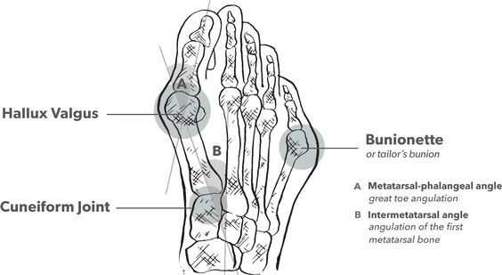 24 best Bunions!! I Don't want Surgery!! images on