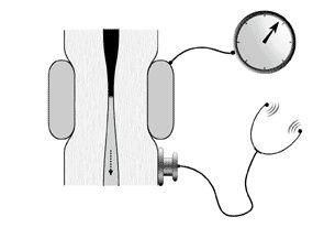 l'Hypertension Arterielle en 200 Questions