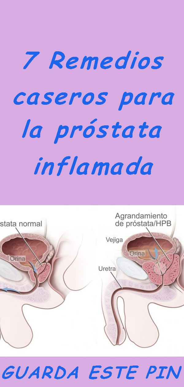 masaje de próstata para video de tampones de uretra youtube
