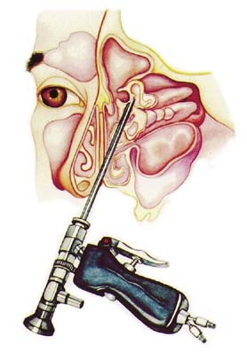 Procedure for Functional Endoscopic Sinus Surgery for Sinus Problem. I'm not sure if this is what they did for my surgery.