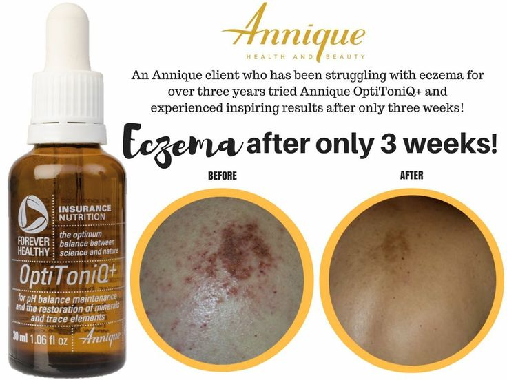 Eczema can be a painful, embarrassing and even debilitating disease. Optimal nutrition is key in fighting and preventing future flare ups. Annique OptiToniQ+ is a 100% organic supplement that not only helps soothe eczema and other skin ailments, it also alleviates blood pressure (high or low), gout and hyperacidity.