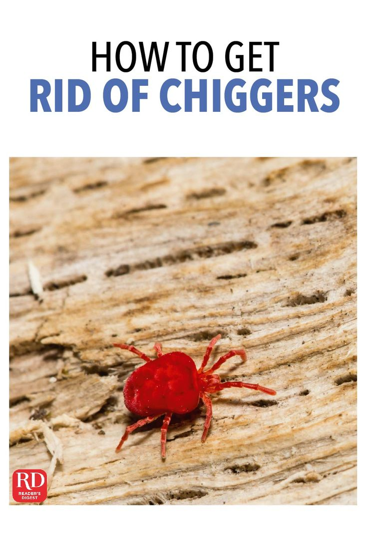 How to get rid of chiggers how to get rid how to get