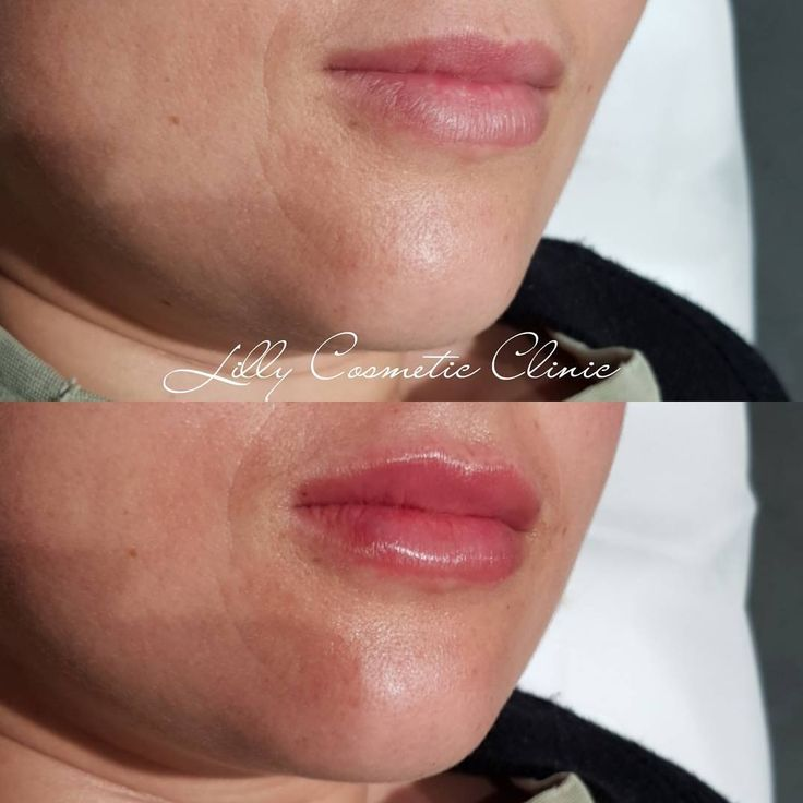 how to help swelling after lip fillers