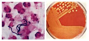 Streptococcus pyogenes and streptococcal disease