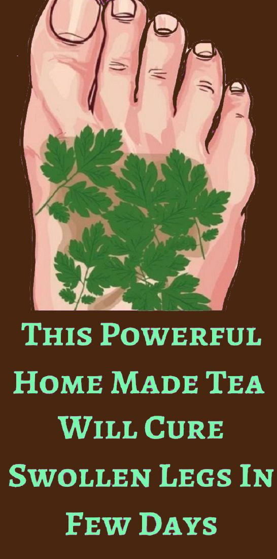 This Highly effective House Made Tea Will Remedy Swollen Legs In Few Days 6c07cda1e093c15f196bd22346d24857