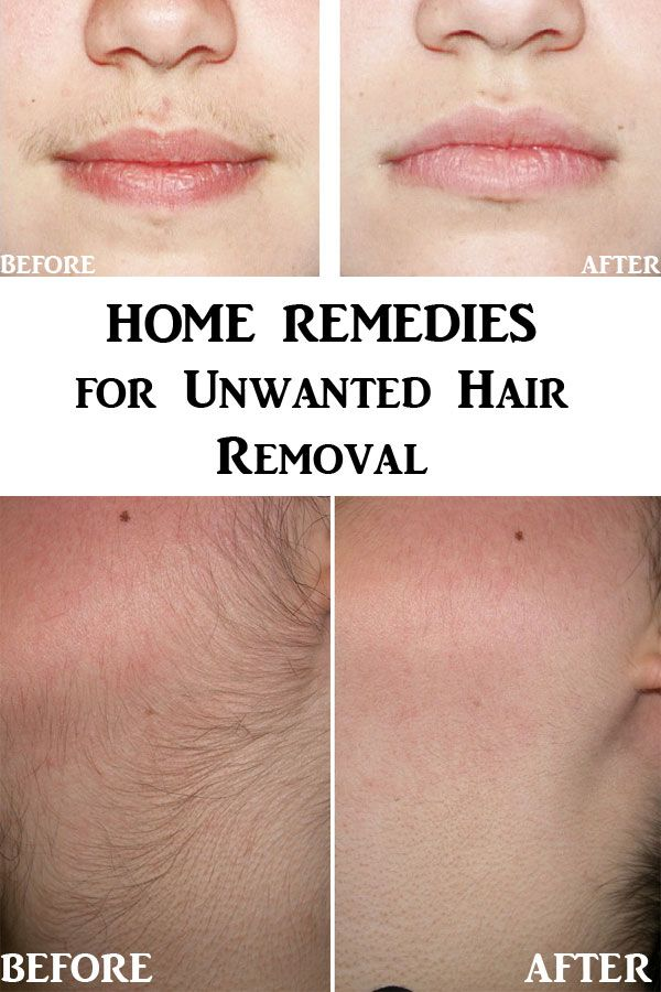 How to remove small facial hair-5476