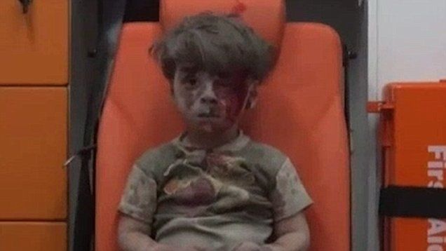 Heartbreaking footage of Syrian children injured in civil war