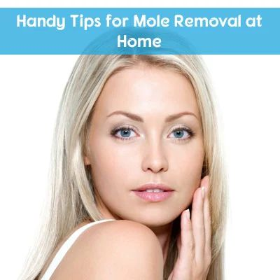 Handy Tips for Mole Removal at Home