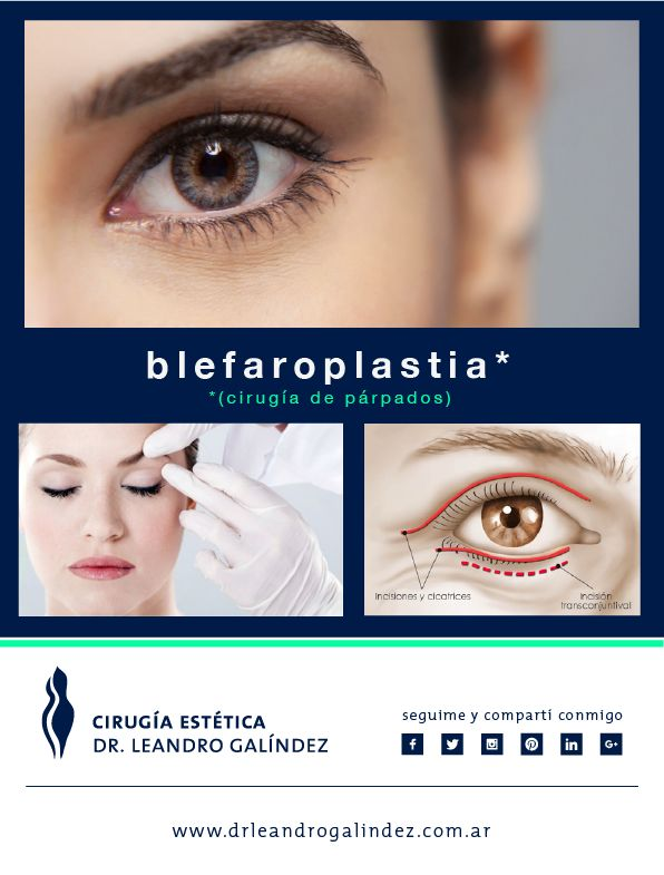 """La Blefaroplastia es la cirugía de Rejuvenecimiento del contorno de los ojos. Ayuda a eliminar las """"bolsitas"""", ojeras, parpados caídos, asi como todos los signos del paso del tiempo, tanto en hombres como en mujeres."""