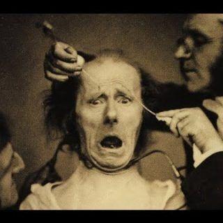 Tarihteki En Korkunç 7 Akıl Hastanesi Görüntüsü. Yapılan Tedavi Yöntemlerine inanamayacaksınız!