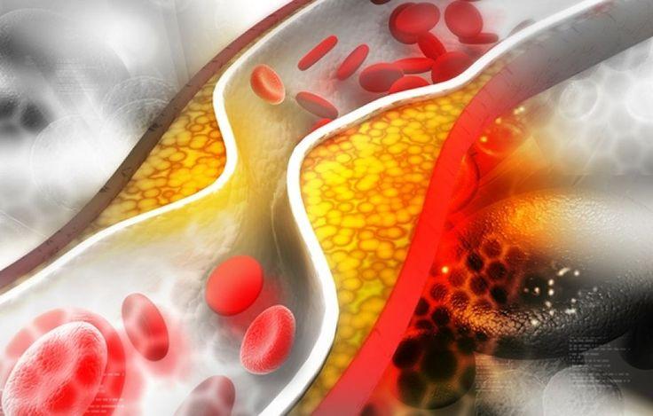 Τι είναι οι λιποπρωτεϊνες