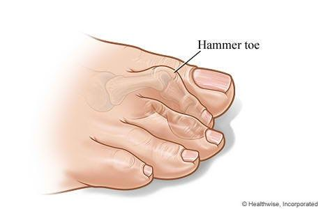 A blog about Foot Care
