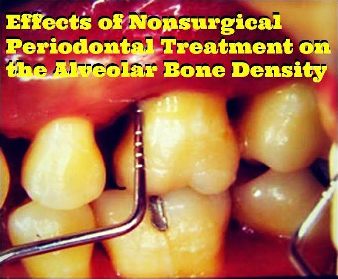 Periodontal-Treatment